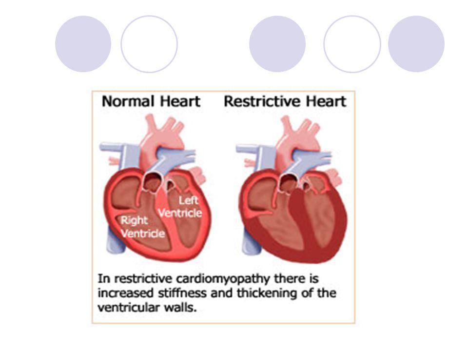 Dilate kardiyomiyopati Ventriküllerin (daha çok LV) dilatasyonu sonucu kardiyomegali oluşur.
