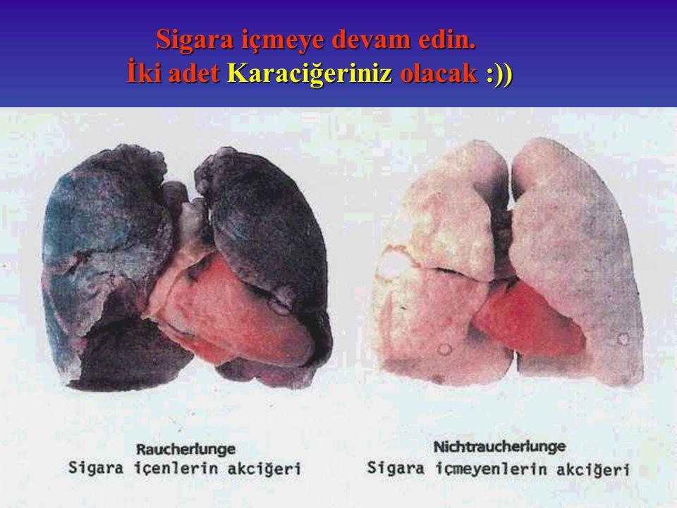 Sigara içmeye devam edin. İki adet Karaciğeriniz olacak :)) İki adet Karaciğeriniz olacak :))