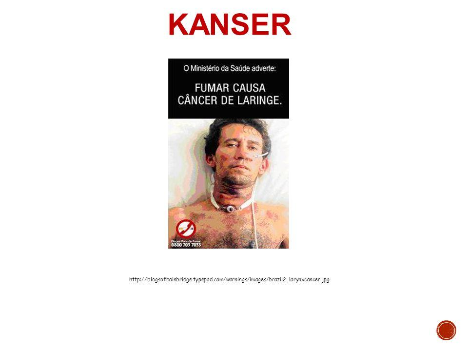 KANSER http://blogsofbainbridge.typepad.com/warnings/images/brazil2_larynxcancer.jpg