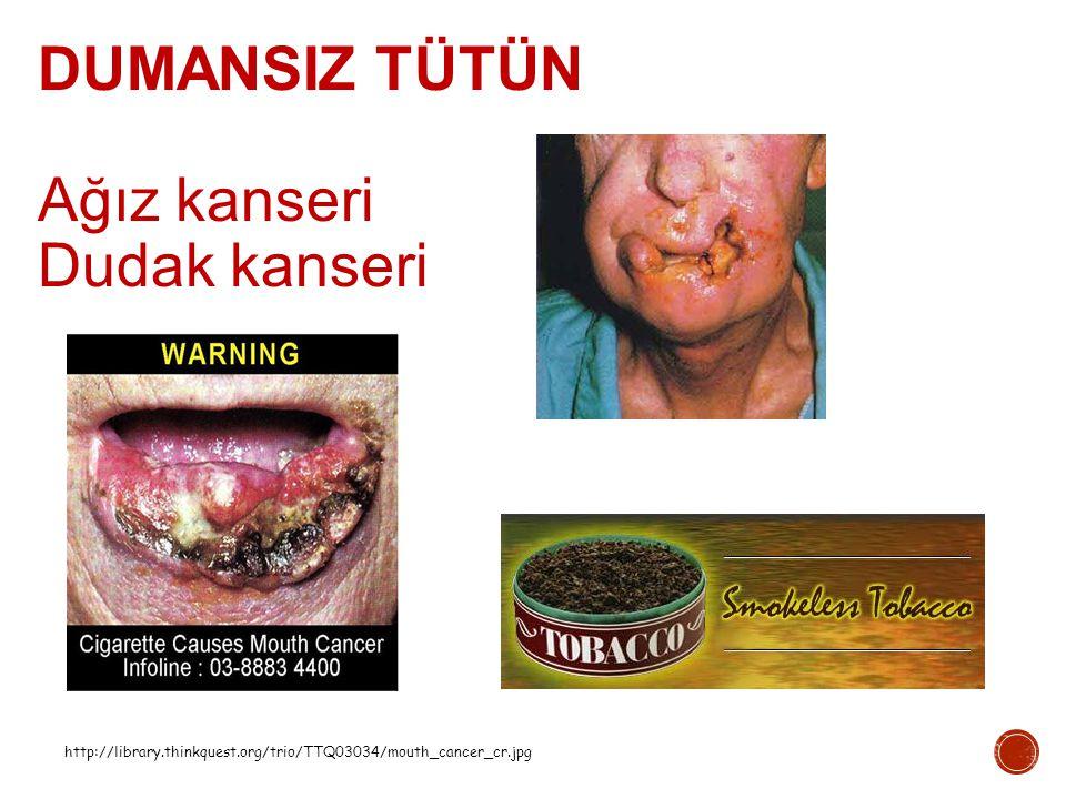 http://library.thinkquest.org/trio/TTQ03034/mouth_cancer_cr.jpg DUMANSIZ TÜTÜN Ağız kanseri Dudak kanseri