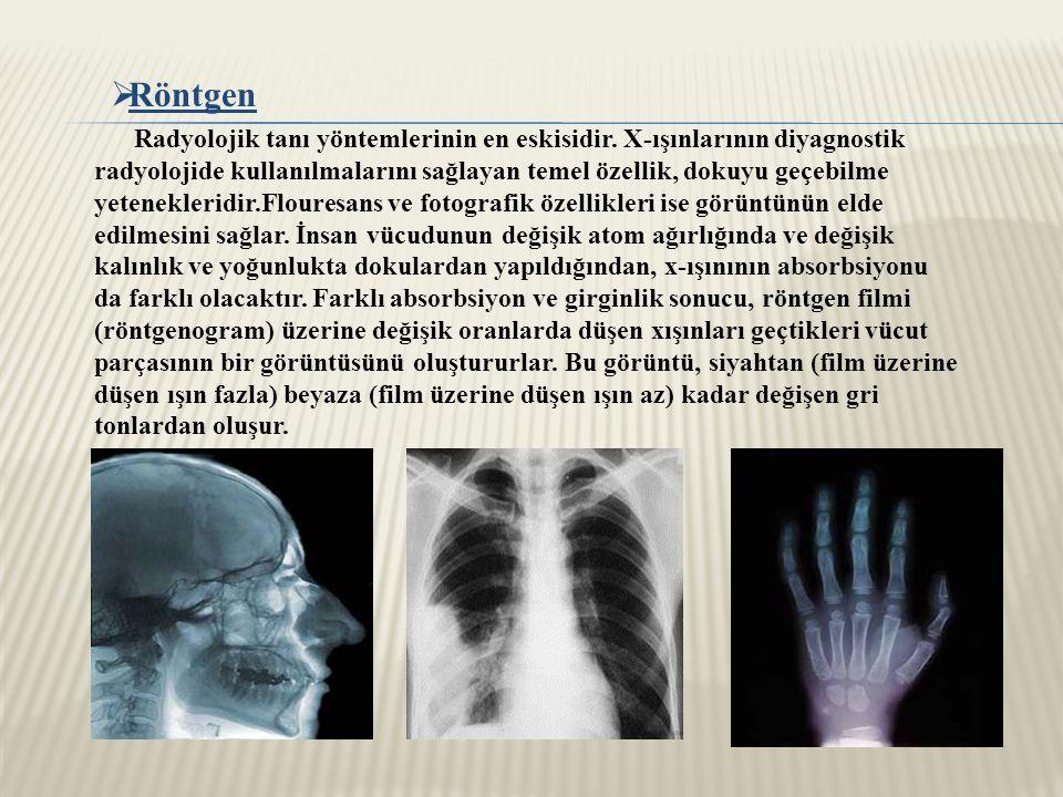  Röntgen Radyolojik tanı yöntemlerinin en eskisidir.