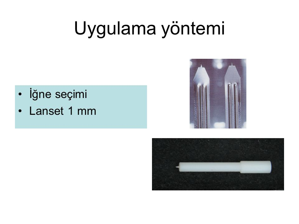 Uygulama yöntemi İğne seçimi Lanset 1 mm