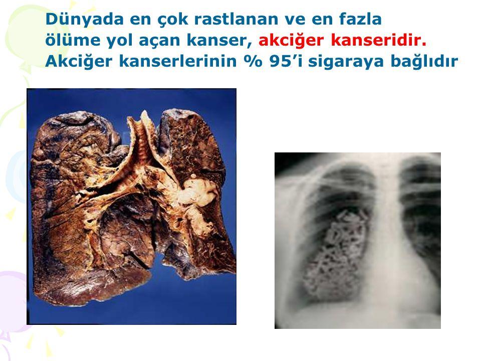 Dünyada en çok rastlanan ve en fazla ölüme yol açan kanser, akciğer kanseridir. Akciğer kanserlerinin % 95'i sigaraya bağlıdır