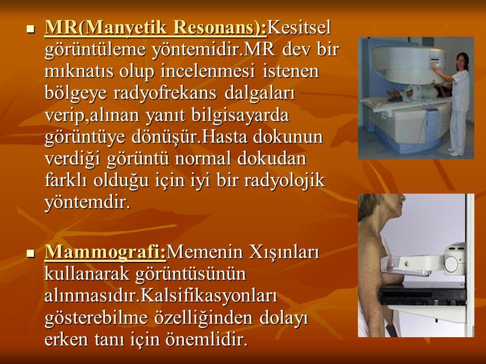 MR(Manyetik Resonans):Kesitsel görüntüleme yöntemidir.MR dev bir mıknatıs olup incelenmesi istenen bölgeye radyofrekans dalgaları verip,alınan yanıt b