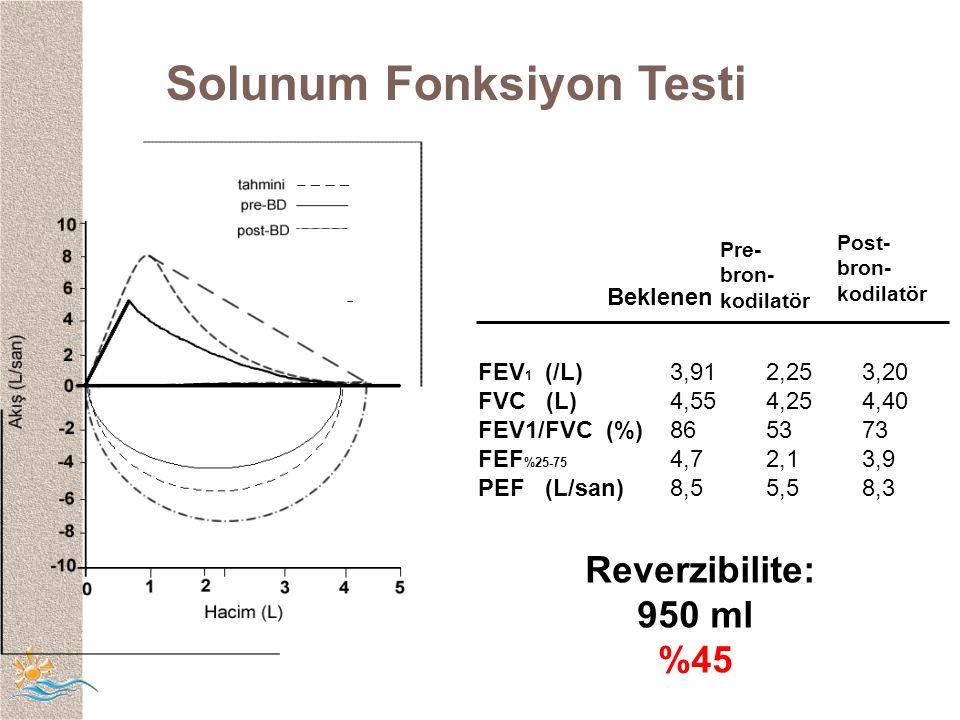 Solunum Fonksiyon Testi Pre- bron- kodilatör Post- bron- kodilatör FEV 1 (/L)3,912,253,20 FVC (L)4,554,254,40 FEV1/FVC (%)865373 FEF %25-75 4,72,13,9 PEF (L/san)8,55,58,3 Beklenen Reverzibilite: 950 ml %45