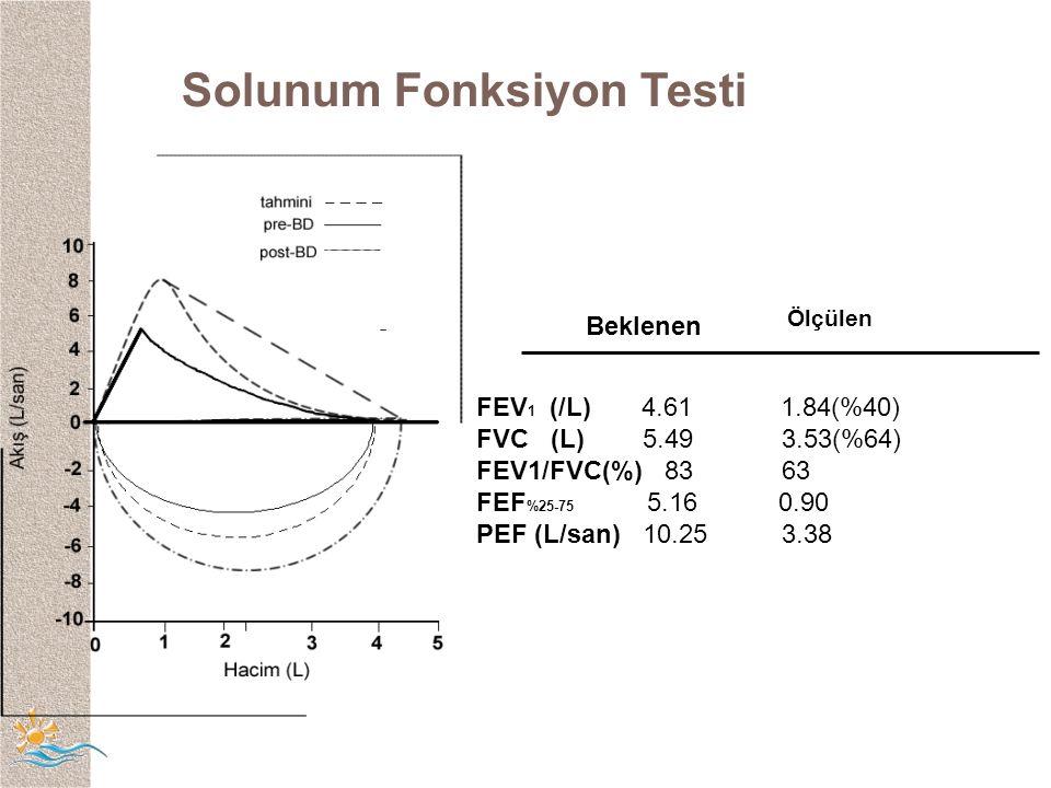 Solunum Fonksiyon Testi Ölçülen FEV 1 (/L) 4.61 1.84(%40) FVC (L) 5.49 3.53(%64) FEV1/FVC(%) 83 63 FEF %25-75 5.16 0.90 PEF (L/san) 10.25 3.38 Beklenen
