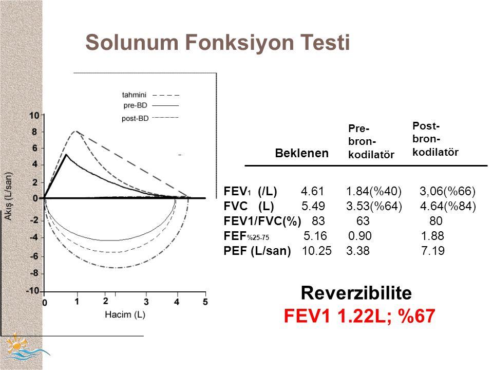 Solunum Fonksiyon Testi Pre- bron- kodilatör Post- bron- kodilatör FEV 1 (/L) 4.61 1.84(%40) 3,06(%66) FVC (L) 5.49 3.53(%64) 4.64(%84) FEV1/FVC(%) 83 63 80 FEF %25-75 5.16 0.901.88 PEF (L/san) 10.25 3.38 7.19 Beklenen Reverzibilite FEV1 1.22L; %67