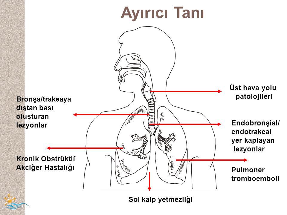 Kronik Obstrüktif Akciğer Hastalığı Endobronşial/ endotrakeal yer kaplayan lezyonlar Üst hava yolu patolojileri Pulmoner tromboemboli Bronşa/trakeaya dıştan bası oluşturan lezyonlar Sol kalp yetmezliği Ayırıcı Tanı