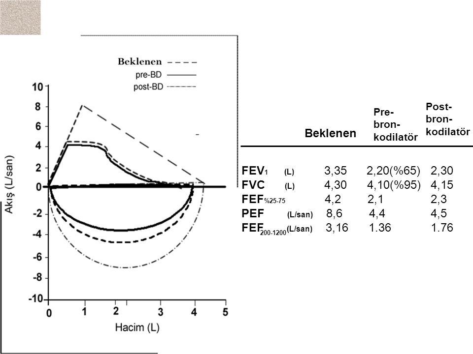 Pre- bron- kodilatör Post- bron- kodilatör FEV 1 (L) 3,35 2,20(%65)2,30 FVC (L) 4,30 4,10(%95)4,15 FEF %25-75 4,2 2,12,3 PEF (L/san) 8,6 4,44,5 FEF (L/san) 3,16 1.361.76 Beklenen 200-1200