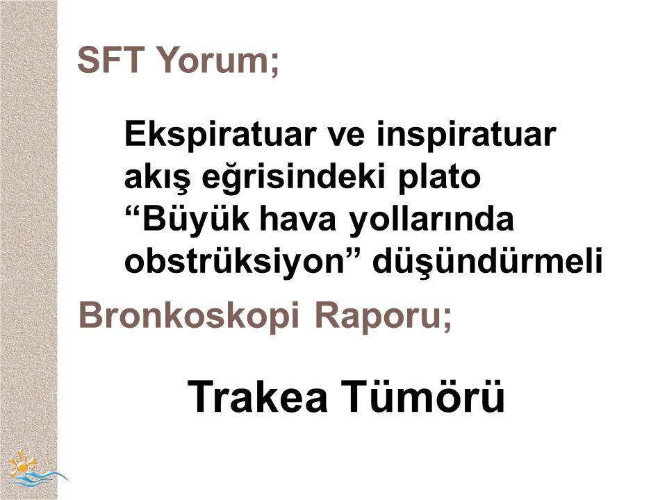 SFT Yorum; Ekspiratuar ve inspiratuar akış eğrisindeki plato Büyük hava yollarında obstrüksiyon düşündürmeli Bronkoskopi Raporu; Trakea Tümörü