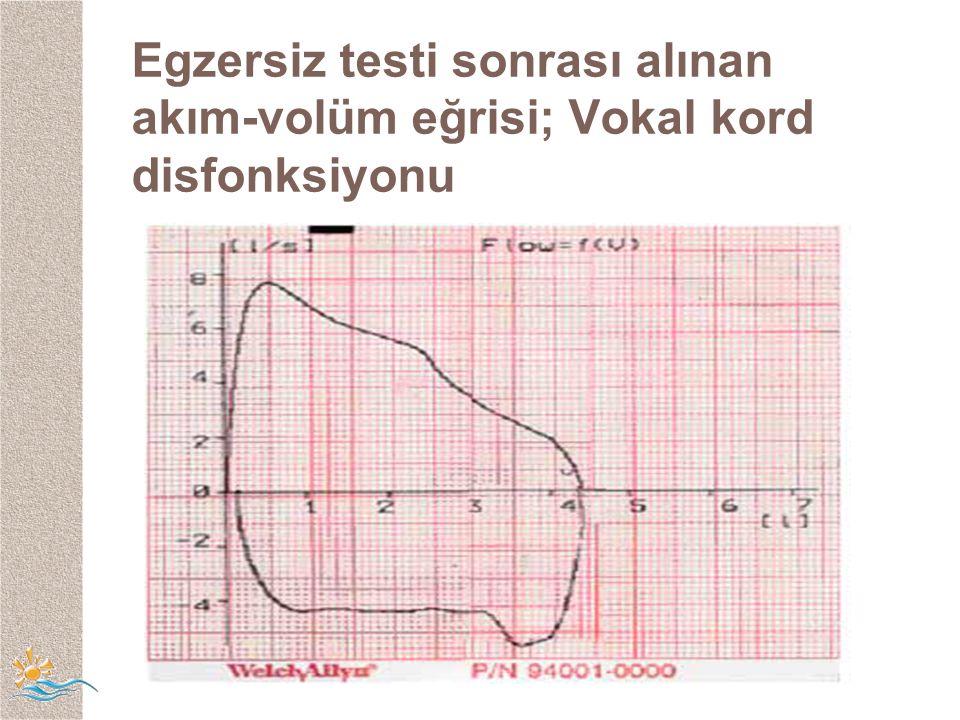 Egzersiz testi sonrası alınan akım-volüm eğrisi; Vokal kord disfonksiyonu