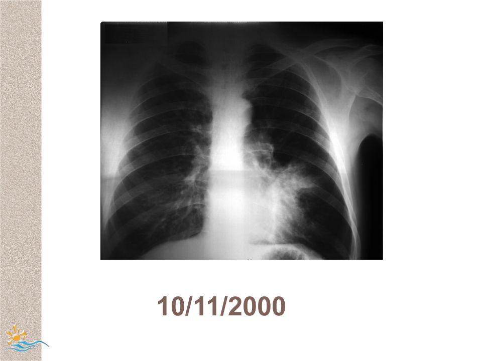 10/11/2000