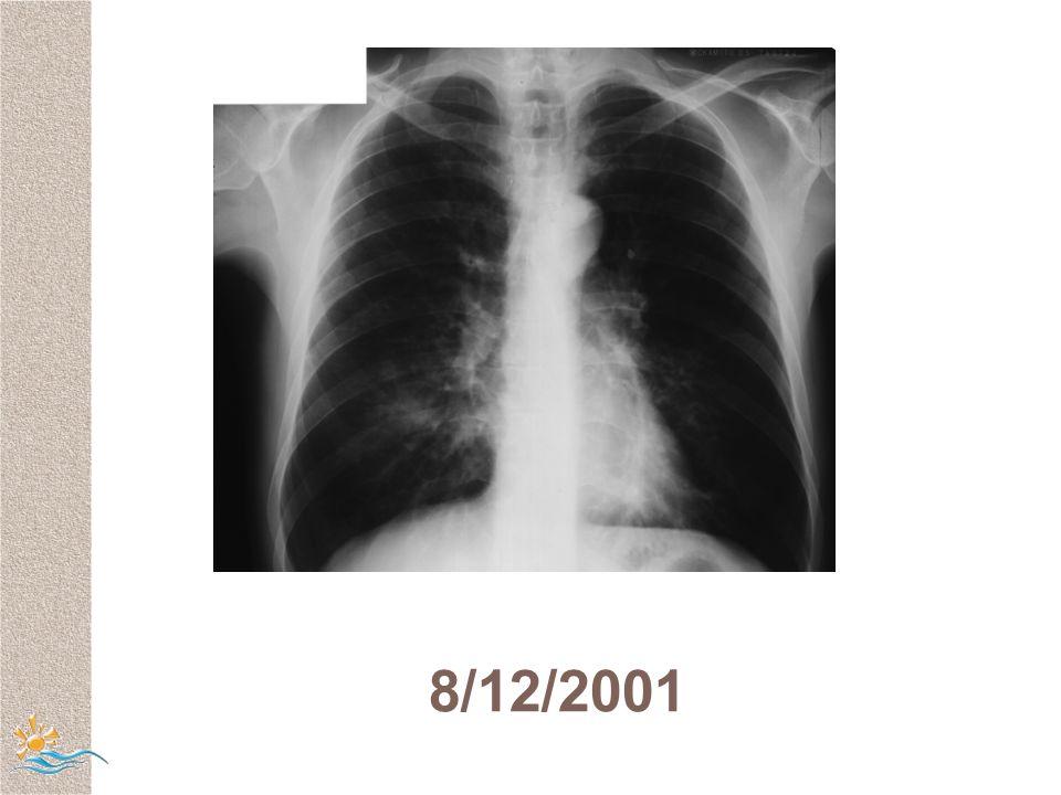 8/12/2001