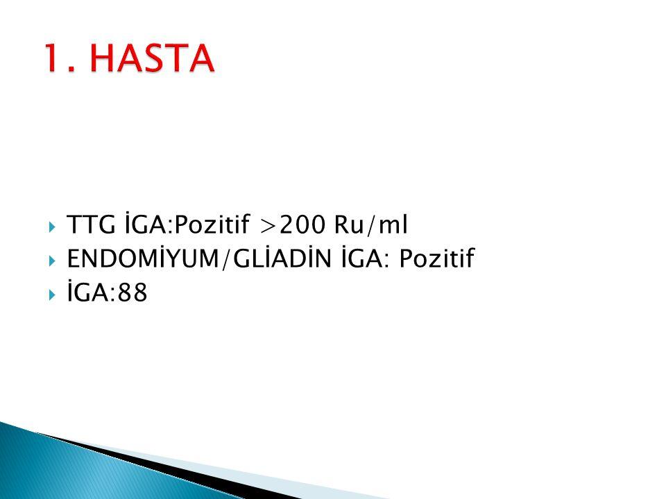  TTG İGA:Pozitif >200 Ru/ml  ENDOMİYUM/GLİADİN İGA: Pozitif  İGA:88