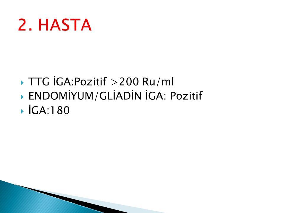  TTG İGA:Pozitif >200 Ru/ml  ENDOMİYUM/GLİADİN İGA: Pozitif  İGA:180