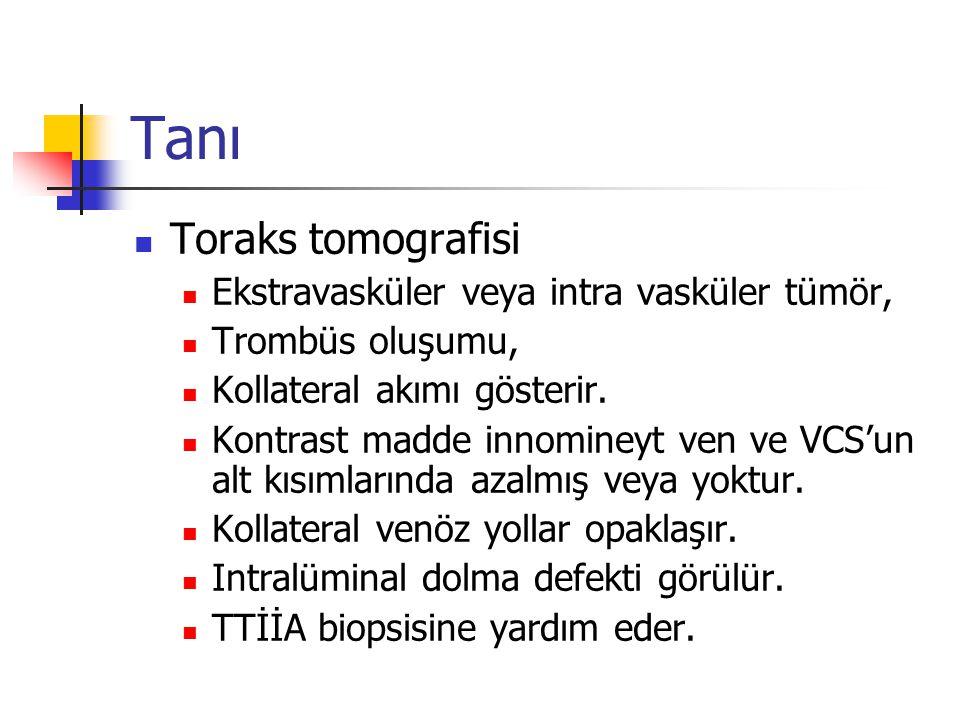 Tanı Toraks tomografisi Ekstravasküler veya intra vasküler tümör, Trombüs oluşumu, Kollateral akımı gösterir. Kontrast madde innomineyt ven ve VCS'un