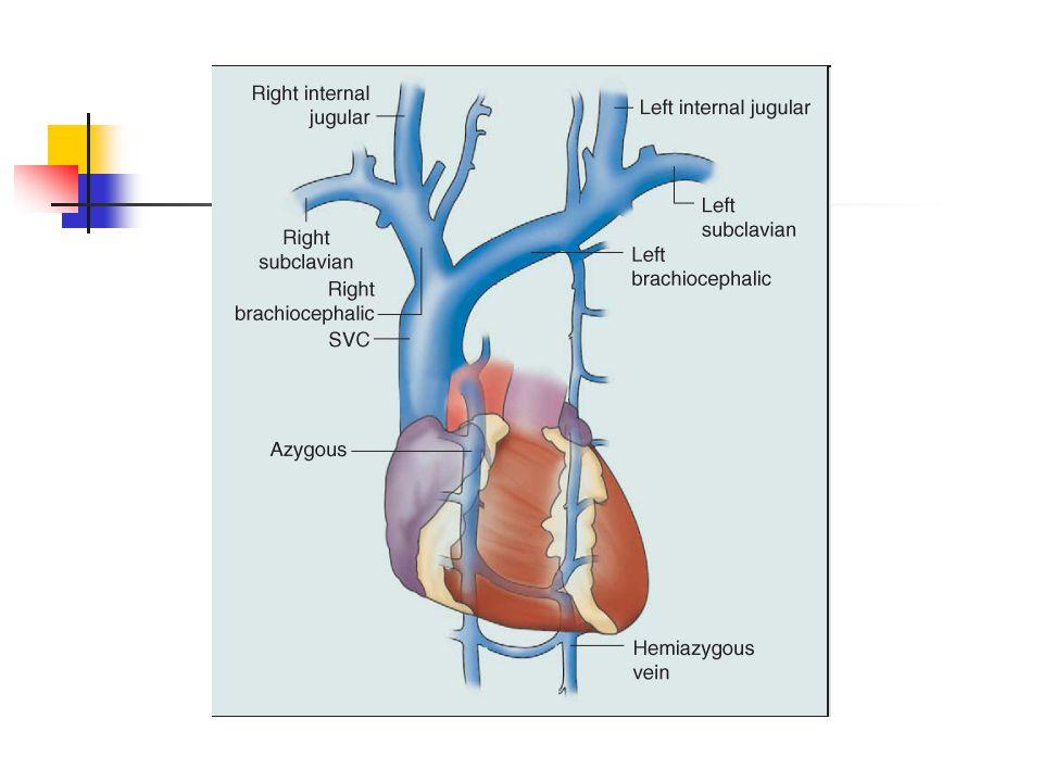 Metastatic malignant teratoma
