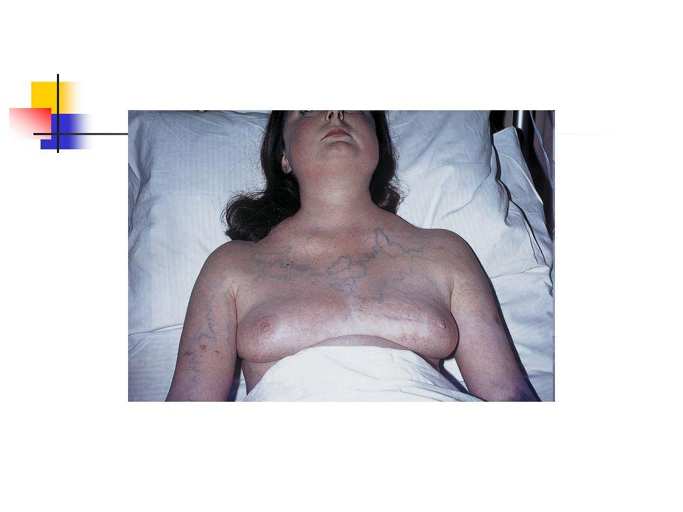 Cerrahi; Malign hastalıklarda önerilmez.KT ve RT dirençli olgulardır.
