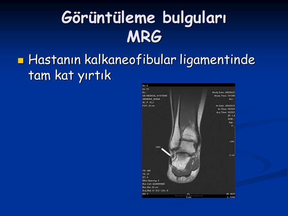 Görüntüleme bulguları MRG Hastanın kalkaneofibular ligamentinde tam kat yırtık Hastanın kalkaneofibular ligamentinde tam kat yırtık