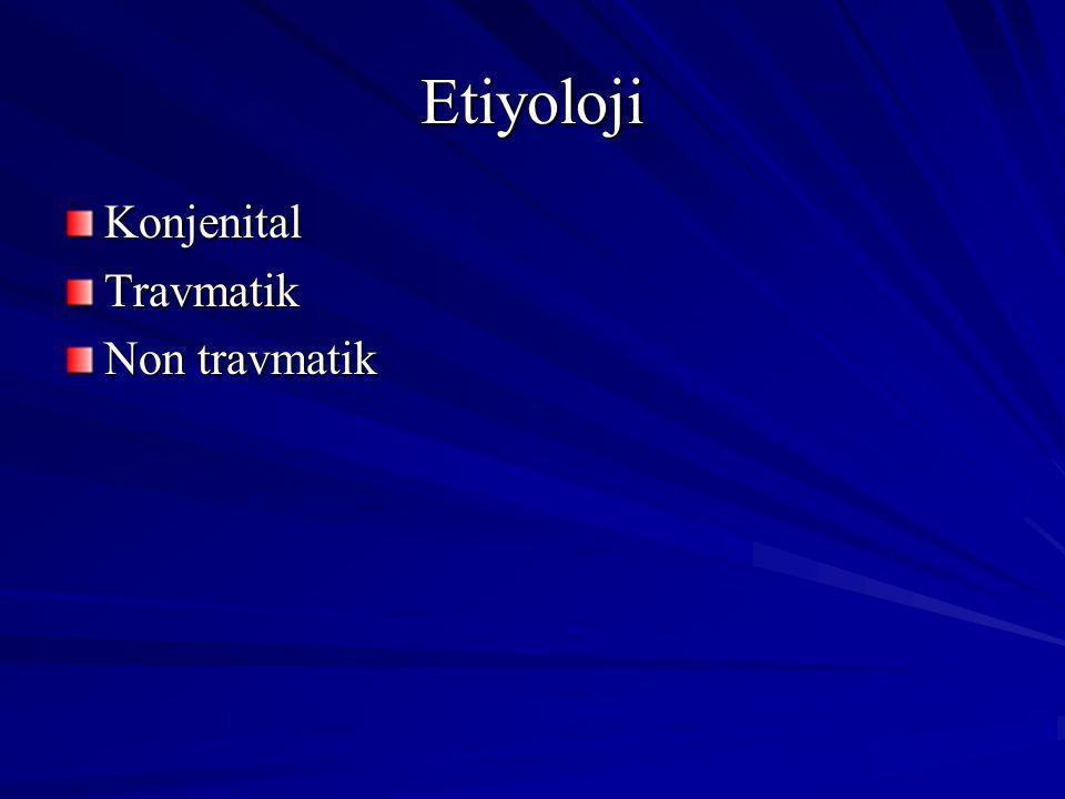 Etiyoloji KonjenitalTravmatik Non travmatik