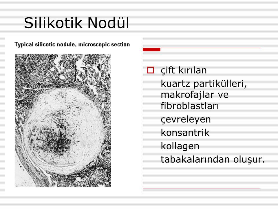 Silikotik Nodül  çift kırılan kuartz partikülleri, makrofajlar ve fibroblastları çevreleyen konsantrik kollagen tabakalarından oluşur.