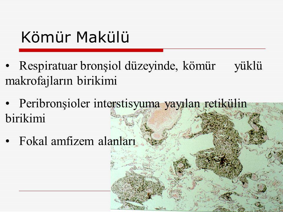 Kömür Makülü Respiratuar bronşiol düzeyinde, kömür yüklü makrofajların birikimi Peribronşioler interstisyuma yayılan retikülin birikimi Fokal amfizem