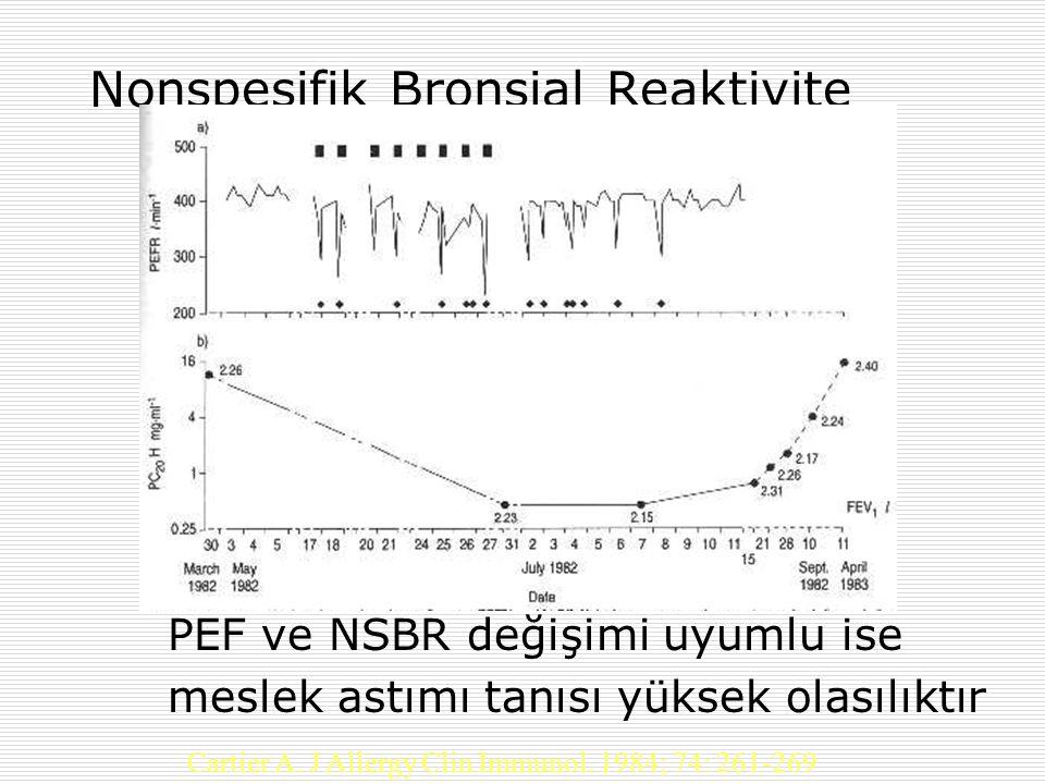 Nonspesifik Bronşial Reaktivite PEF ve NSBR değişimi uyumlu ise meslek astımı tanısı yüksek olasılıktır Cartier A. J Allergy Clin Immunol. 1984; 74: 2