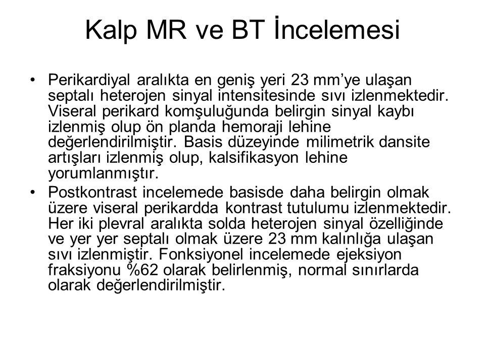 Kalp MR ve BT İncelemesi Perikardiyal aralıkta en geniş yeri 23 mm'ye ulaşan septalı heterojen sinyal intensitesinde sıvı izlenmektedir.