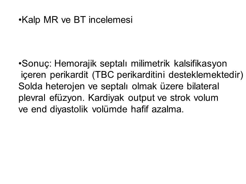Kalp MR ve BT incelemesi Sonuç: Hemorajik septalı milimetrik kalsifikasyon içeren perikardit (TBC perikarditini desteklemektedir) Solda heterojen ve septalı olmak üzere bilateral plevral efüzyon.