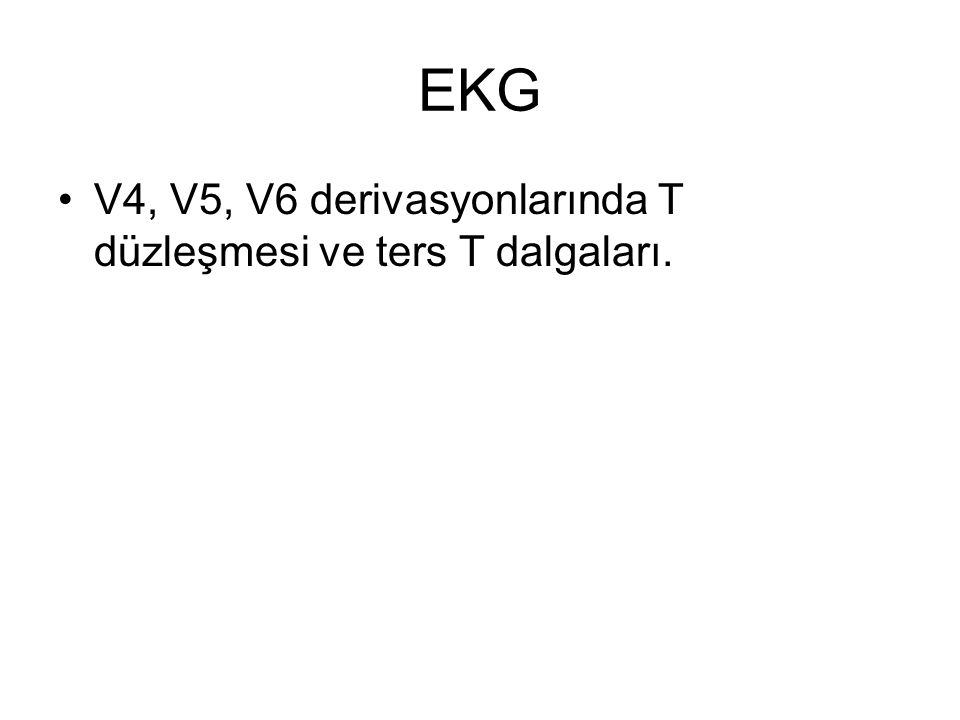 EKG V4, V5, V6 derivasyonlarında T düzleşmesi ve ters T dalgaları.