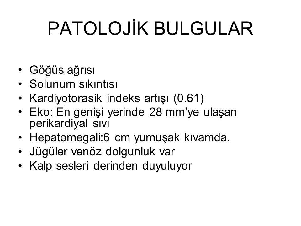 PERİKARD SIVISI PH: 8 Protein: 5,2 g/dl Glukoz:123 mg/dl LDH: 208 U/L Perikard LDH/serum LDH: 1,3