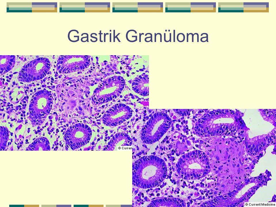 Gastrik Granüloma