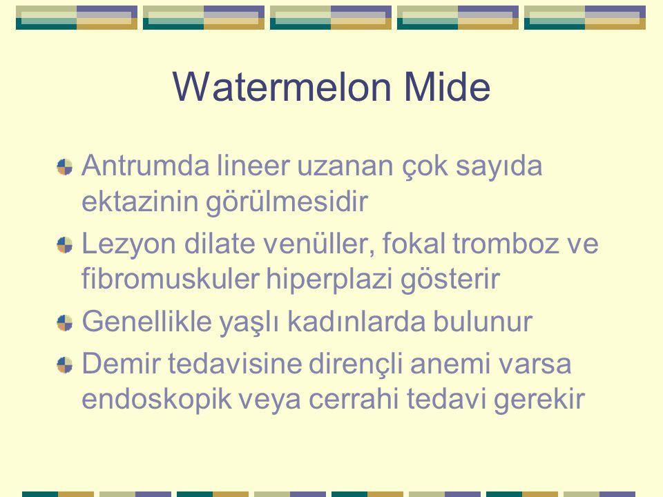 Watermelon Mide Antrumda lineer uzanan çok sayıda ektazinin görülmesidir Lezyon dilate venüller, fokal tromboz ve fibromuskuler hiperplazi gösterir Ge