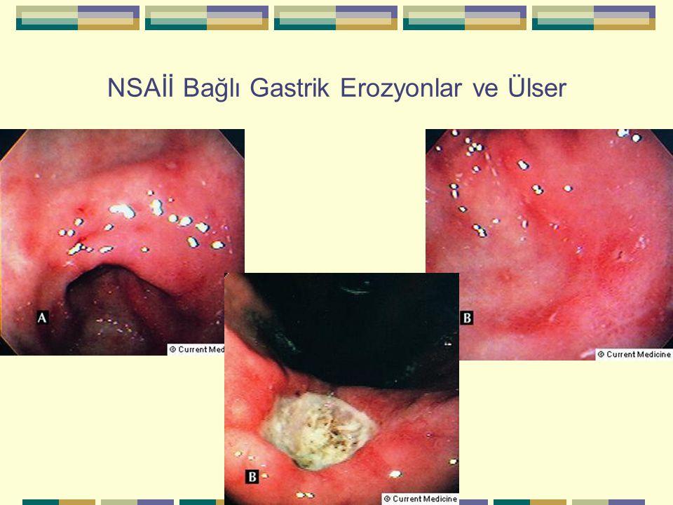 NSAİİ Bağlı Gastrik Erozyonlar ve Ülser