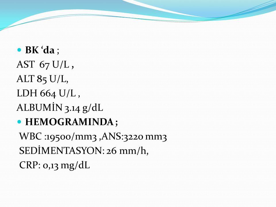 BK 'da ; AST 67 U/L, ALT 85 U/L, LDH 664 U/L, ALBUMİN 3.14 g/dL HEMOGRAMINDA ; WBC :19500/mm3,ANS:3220 mm3 SEDİMENTASYON: 26 mm/h, CRP: 0,13 mg/dL