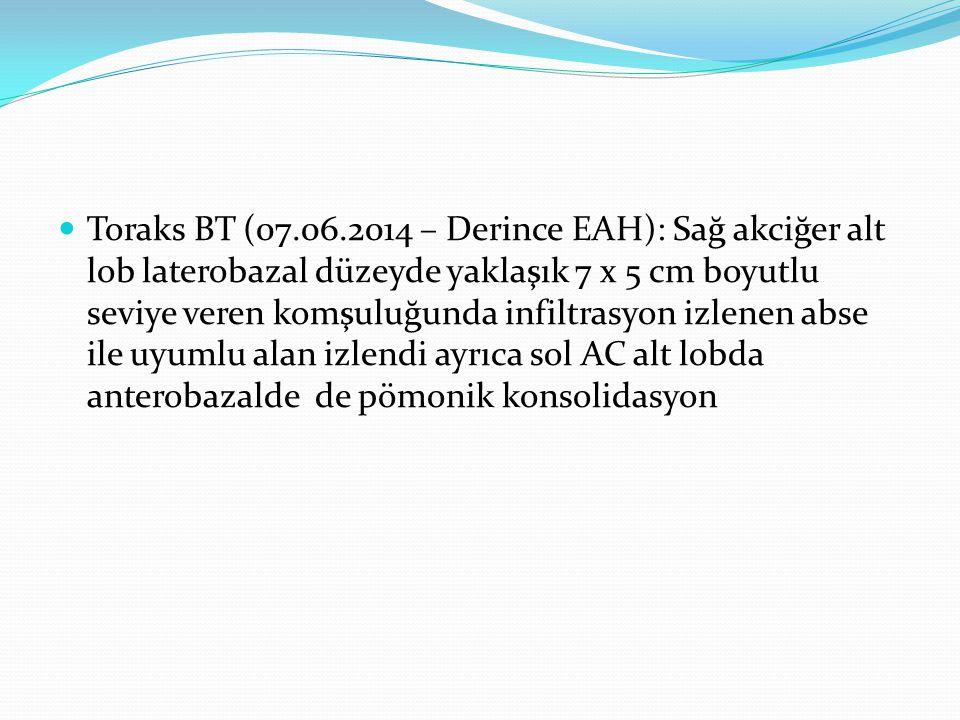 Toraks BT (07.06.2014 – Derince EAH): Sağ akciğer alt lob laterobazal düzeyde yaklaşık 7 x 5 cm boyutlu seviye veren komşuluğunda infiltrasyon izlenen