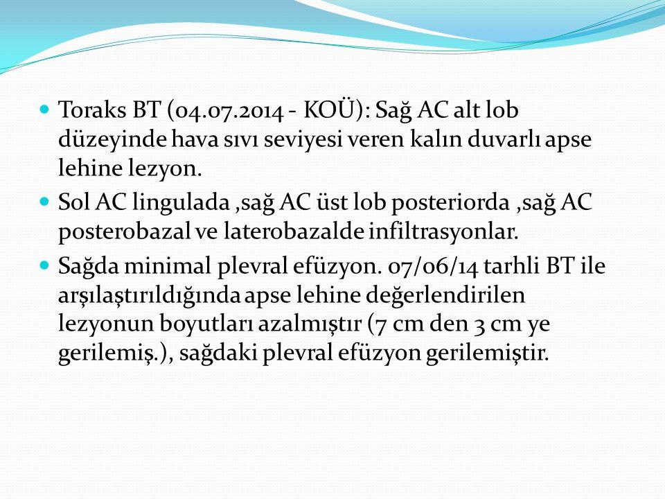 Toraks BT (04.07.2014 - KOÜ): Sağ AC alt lob düzeyinde hava sıvı seviyesi veren kalın duvarlı apse lehine lezyon. Sol AC lingulada,sağ AC üst lob post