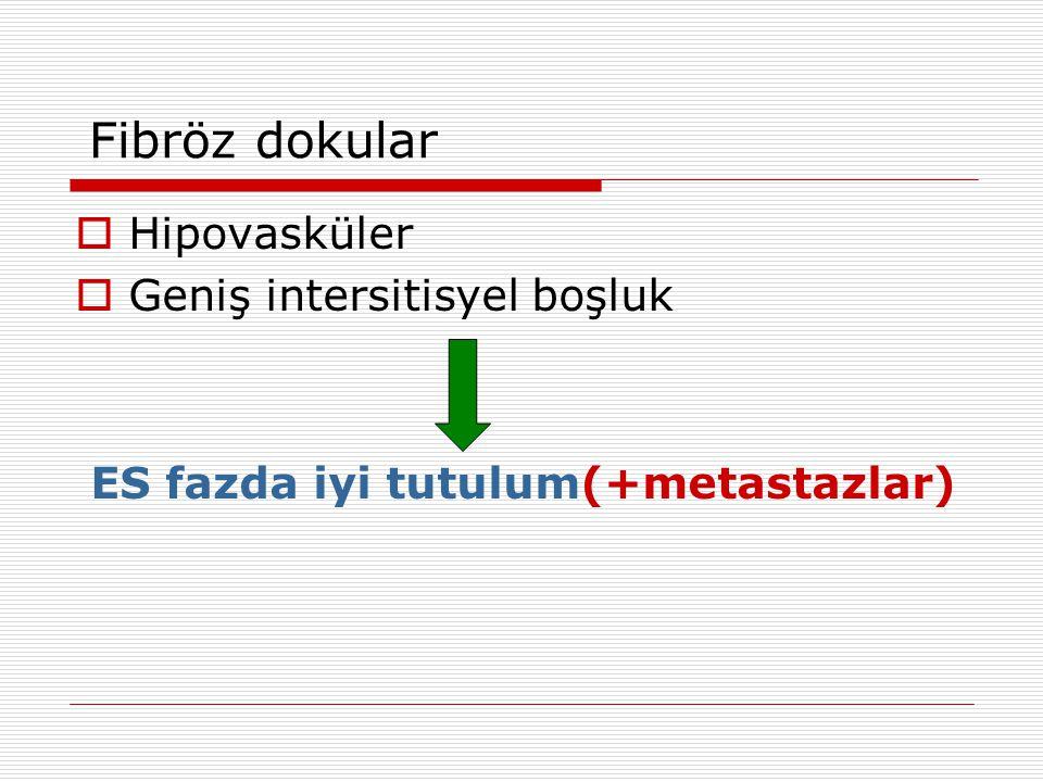 Fibröz dokular  Hipovasküler  Geniş intersitisyel boşluk ES fazda iyi tutulum(+metastazlar)