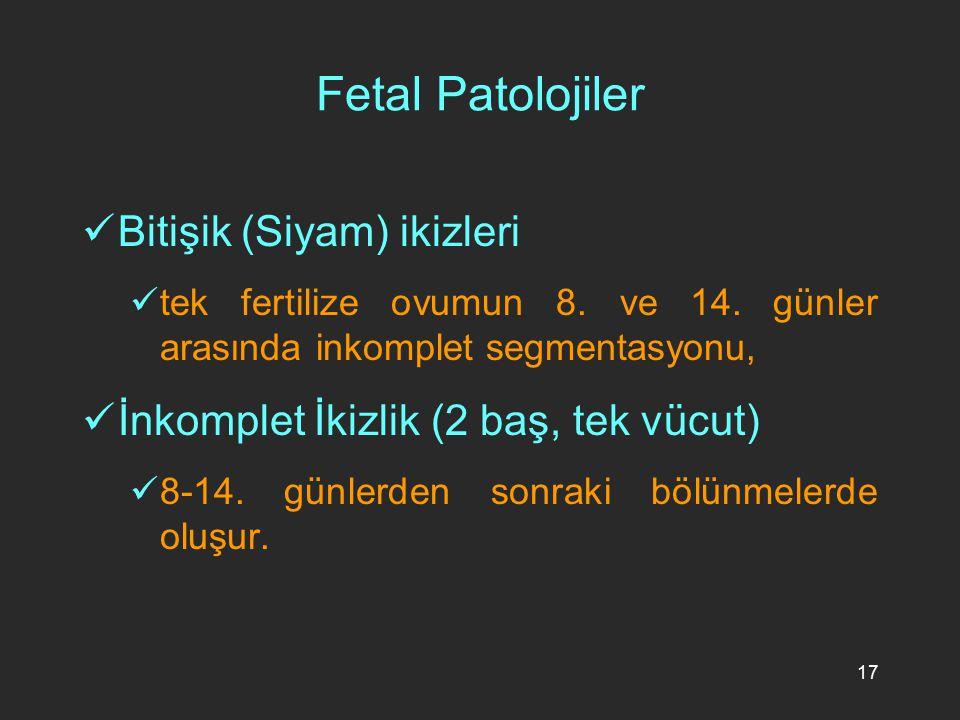 17 Fetal Patolojiler Bitişik (Siyam) ikizleri tek fertilize ovumun 8. ve 14. günler arasında inkomplet segmentasyonu, İnkomplet İkizlik (2 baş, tek vü