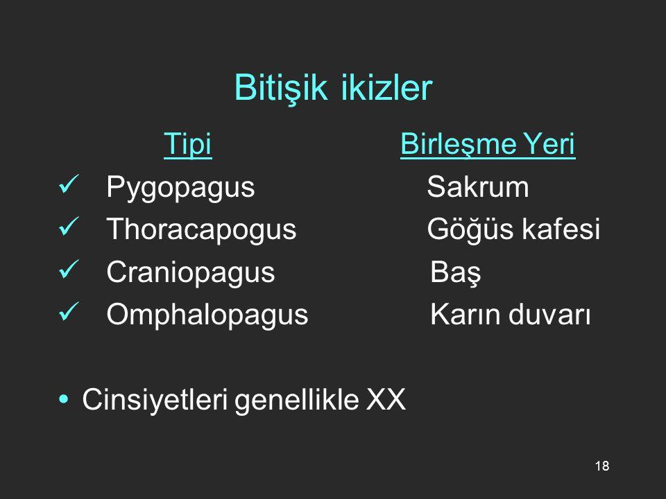 18 Bitişik ikizler Tipi Birleşme Yeri Pygopagus Sakrum Thoracapogus Göğüs kafesi Craniopagus Baş Omphalopagus Karın duvarı  Cinsiyetleri genellikle X