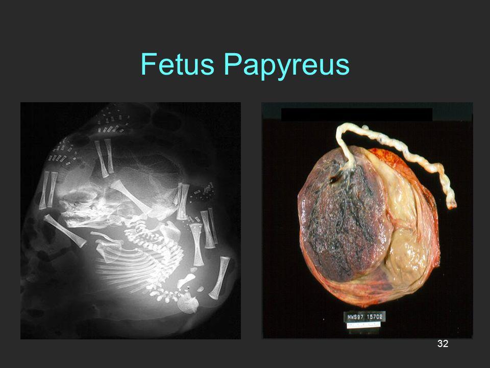 32 Fetus Papyreus