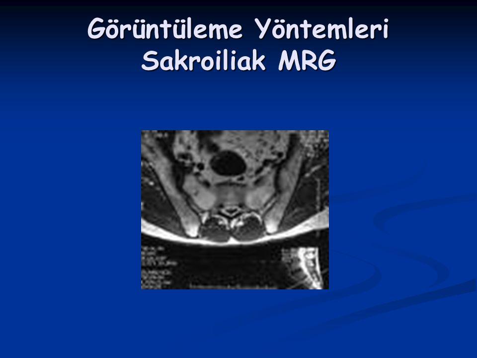 Görüntüleme Yöntemleri Sakroiliak MRG