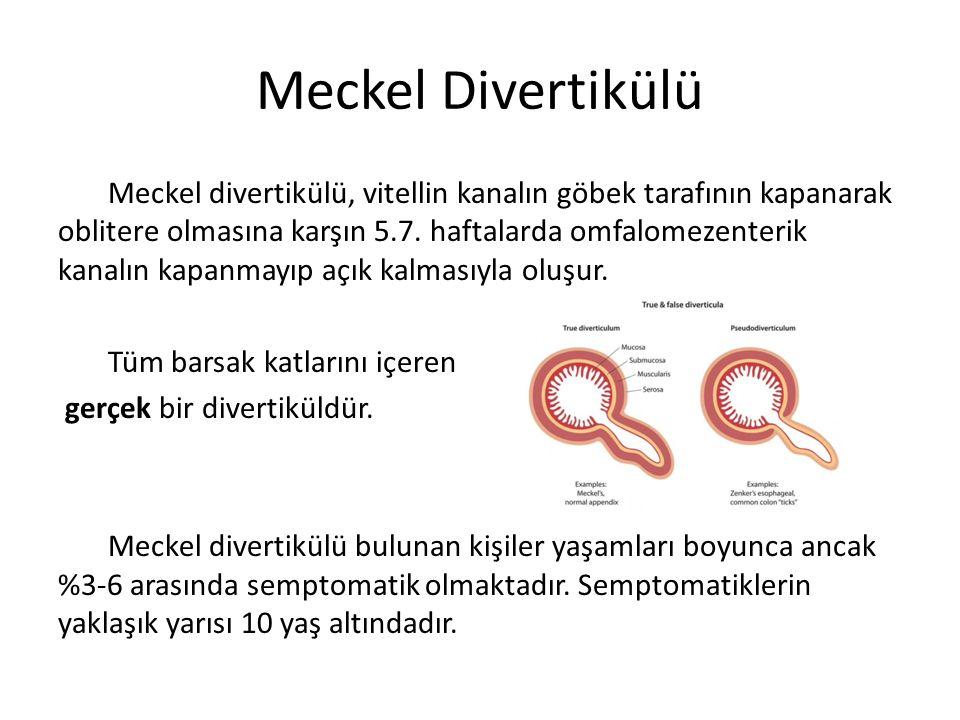 Meckel Divertikülü Meckel divertikülü, vitellin kanalın göbek tarafının kapanarak oblitere olmasına karşın 5.7. haftalarda omfalomezenterik kanalın ka