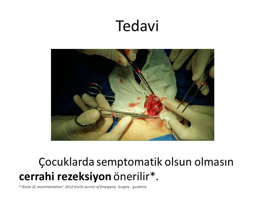 Tedavi Çocuklarda semptomatik olsun olmasın cerrahi rezeksiyon önerilir*. *'Grade 2C recommendation' 2013 World Journal of Emergency Surgery - guideli