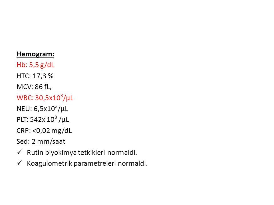 Hemogram: Hb: 5,5 g/dL HTC: 17,3 % MCV: 86 fL, WBC: 30,5x10 3 /μL NEU: 6,5x10 3 /μL PLT: 542x 10 3 /μL CRP: <0,02 mg/dL Sed: 2 mm/saat Rutin biyokimya