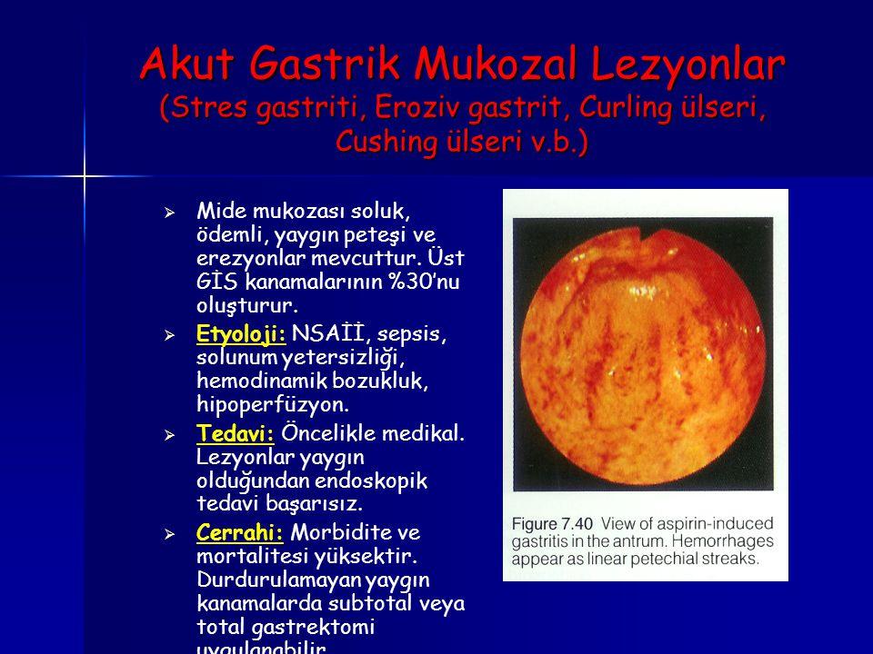Akut Gastrik Mukozal Lezyonlar (Stres gastriti, Eroziv gastrit, Curling ülseri, Cushing ülseri v.b.)   Mide mukozası soluk, ödemli, yaygın peteşi ve