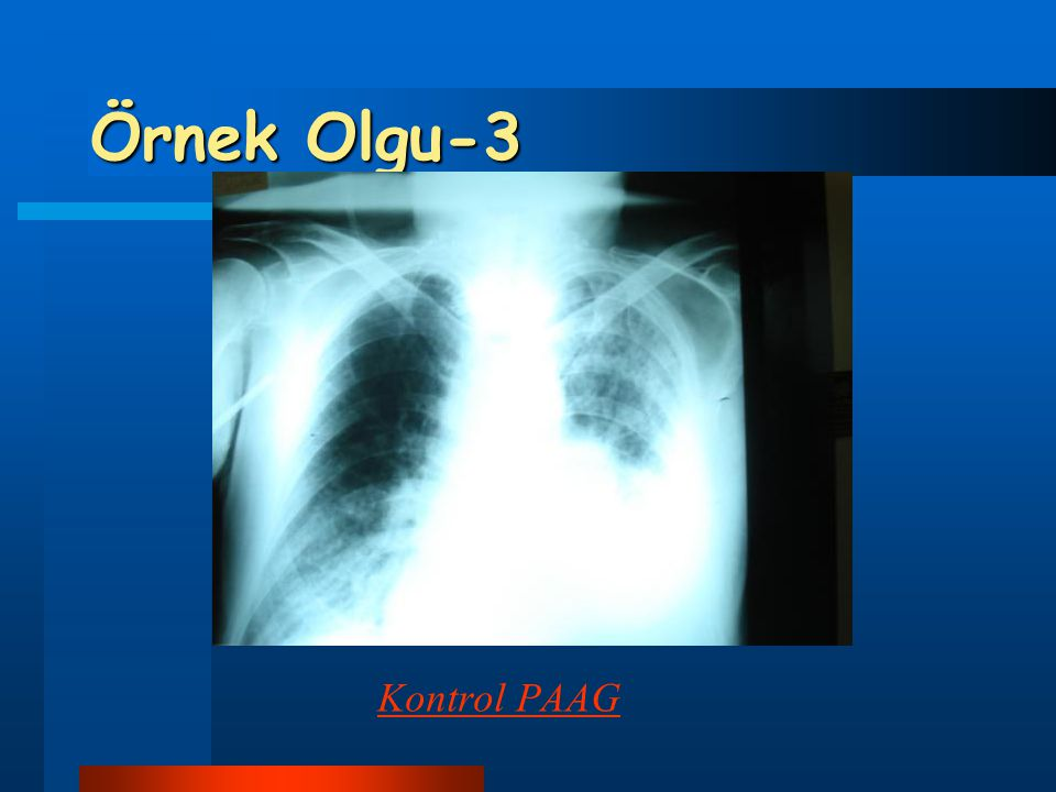 Örnek Olgu-3 Kontrol PAAG