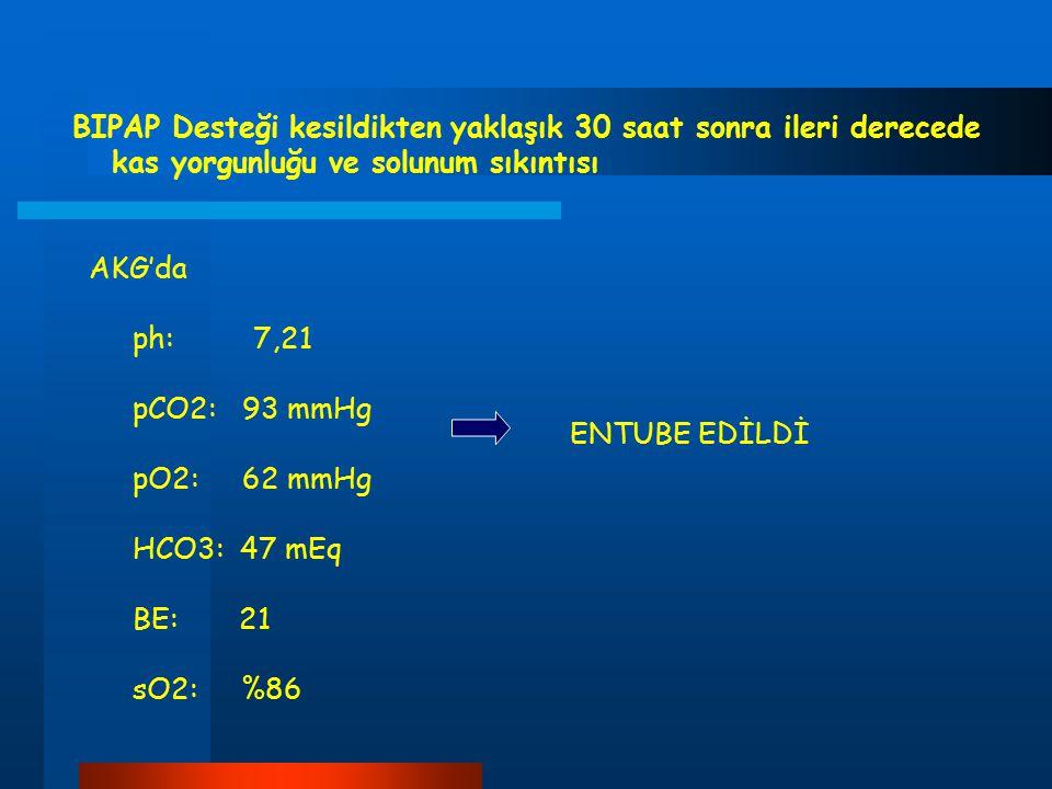 BIPAP Desteği kesildikten yaklaşık 30 saat sonra ileri derecede kas yorgunluğu ve solunum sıkıntısı AKG'da ph: 7,21 pCO2: 93 mmHg pO2: 62 mmHg HCO3: 4