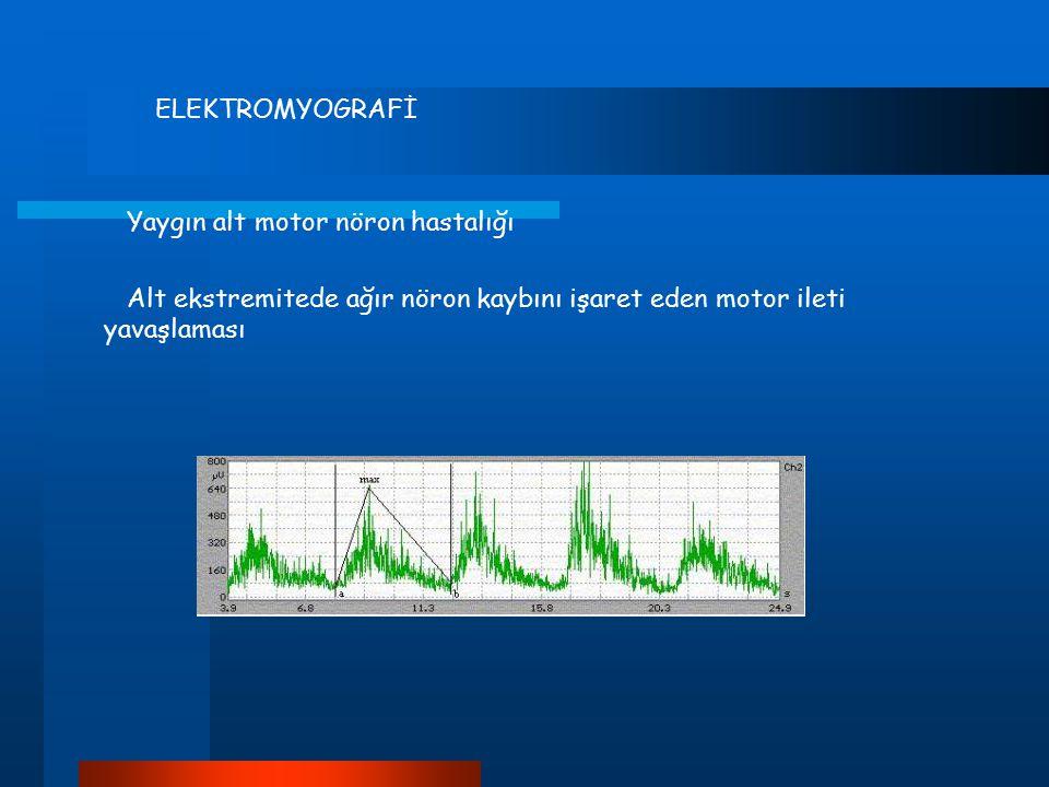 ELEKTROMYOGRAFİ Yaygın alt motor nöron hastalığı Alt ekstremitede ağır nöron kaybını işaret eden motor ileti yavaşlaması