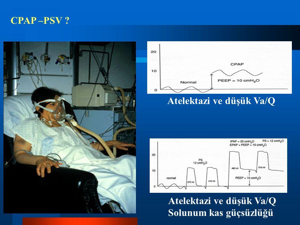 CPAP –PSV ? Atelektazi ve düşük Va/Q Solunum kas güçsüzlüğü